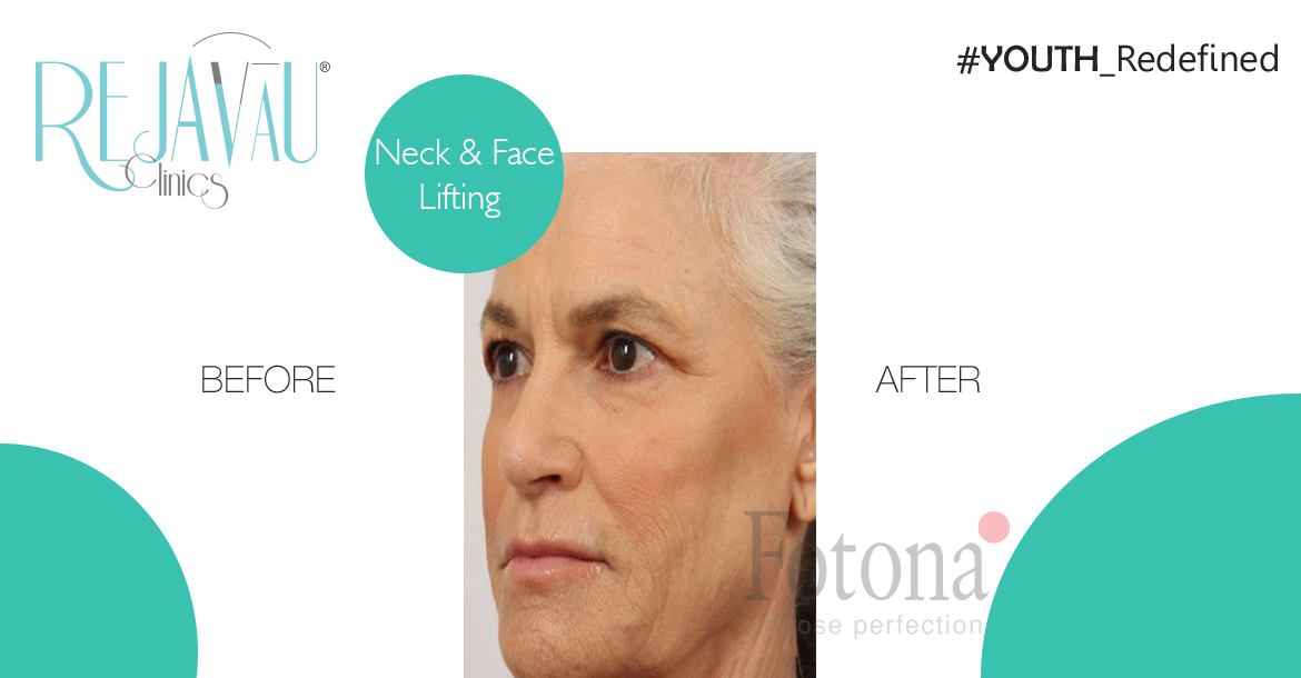 After-Neck & Face Lifting