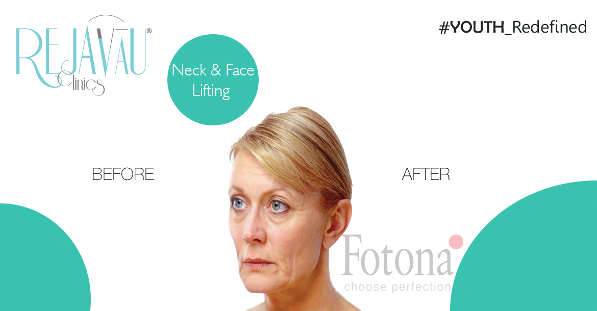 Before-Face Lifting 4D