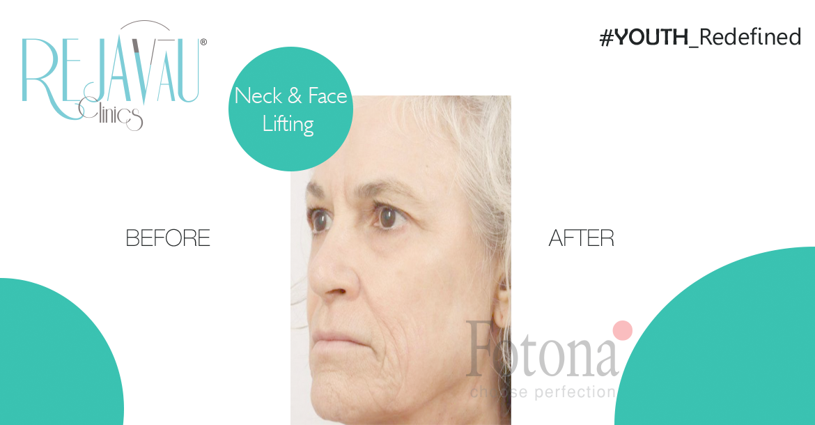 Before-Neck & Face Lifting